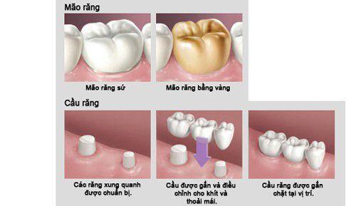 Mão răng và cầu răng