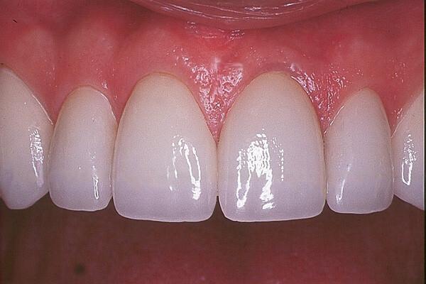 mão răng sứ