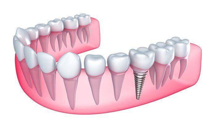 Mất 2 răng số 6 phải làm sao ?
