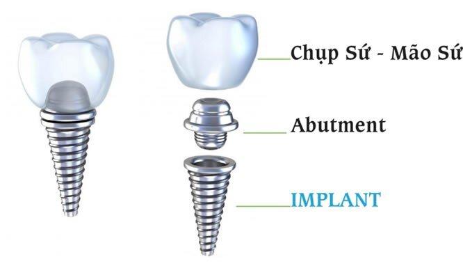 mất bao lâu để hoàn thành một ca cấy ghép implant