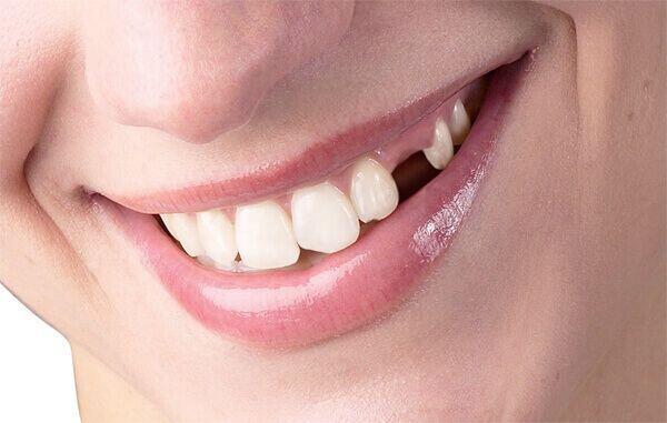 Mất chân răng có trồng lại được không?