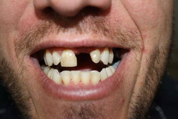 Mất chân răng có trồng lại được không ?