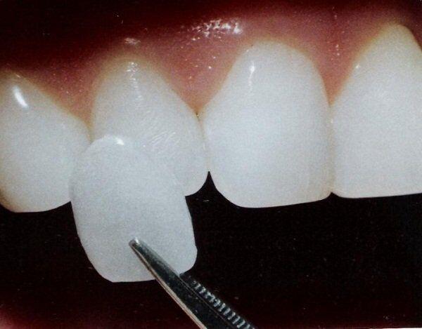 Mặt dán sứ Veneer có phải là cách thẩm mỹ răng tốt?