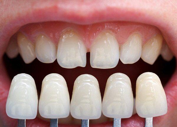 Mặt dán sứ Veneer có phải là cách thẩm mỹ răng tốt ?