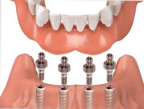 Mất hết răng thì cần phải cấy bao nhiêu implant ?