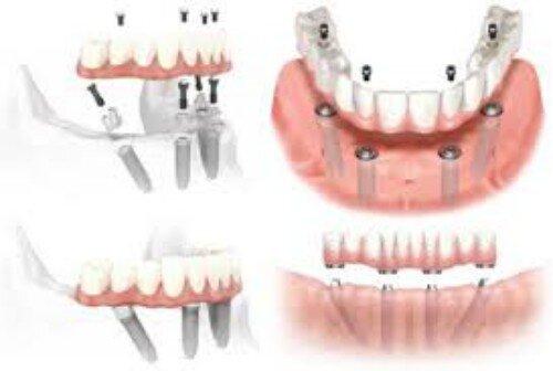 Kỹ thuật cắm ghép răng thường gặp
