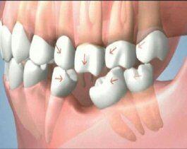 Mất răng cấm có ảnh hưởng sức khỏe không?