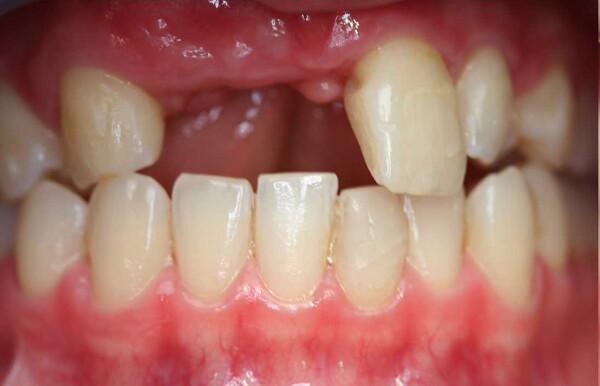 Mất răng cửa và cách khắc phục hoàn hảo