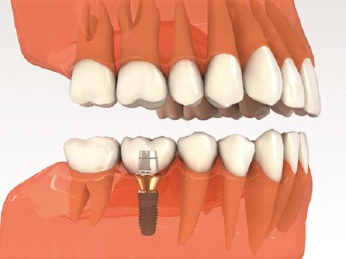 Mất răng hàm số 6 7 và cách khắc phục