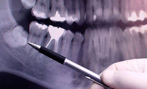 Mất răng khôn có ảnh hưởng đến sức khoẻ không?