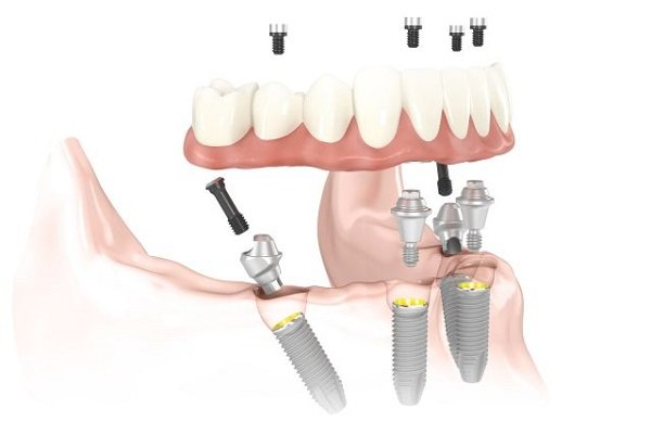 Mất răng lâu năm có trồng lại được không ?