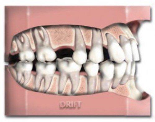Mất răng và hậu quả