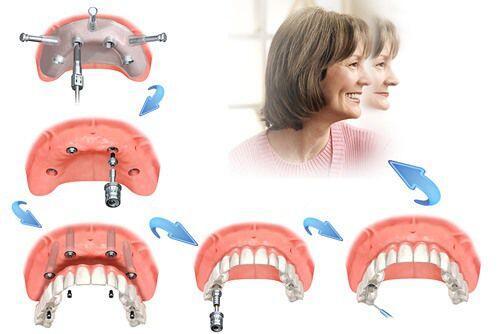 Mất răng và nguy cơ ung thư tăng cao