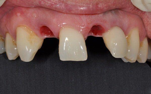 Mất răng vĩnh viễn phải làm sao?