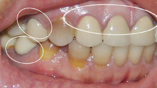 Thủ phạm khiến răng ố vàng