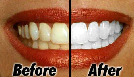 mẹo hay để có hàm răng trắng cấp tốc