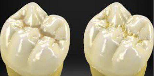 Miếng trám răng bị hỏng phải làm sao?