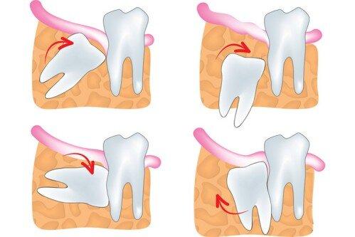 Mọc răng khôn có ý nghĩa gì ?