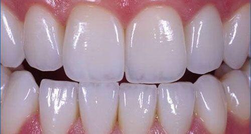 Bọc răng sứ nguyên hàm và những điều bạn cần biết 1