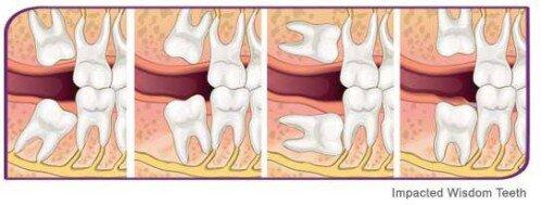Mọc răng khôn nên uống thuốc gì để hết đau?