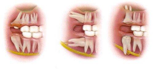 Image result for Mọc răng khôn đau trong bao lâu?