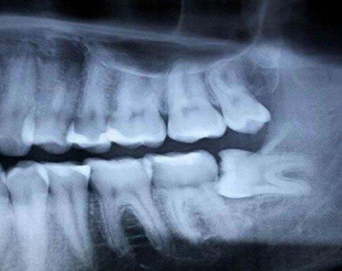 Mọc răng khôn trong bao lâu ?