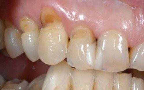 Mòn răng, tụt lợi vì vệ sinh răng quá thường xuyên