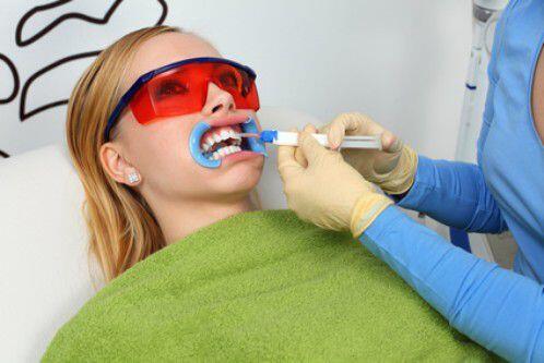 Nên tẩy trắng răng bằng phương pháp nào?