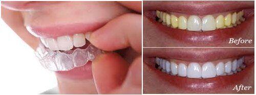 Một số lưu ý khi tẩy trắng răng tại nhàMột số lưu ý khi tẩy trắng răng tại nhà