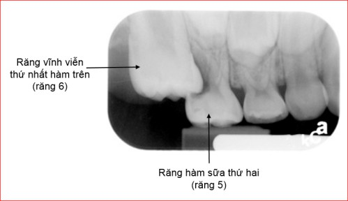 Răng hỗn hợp