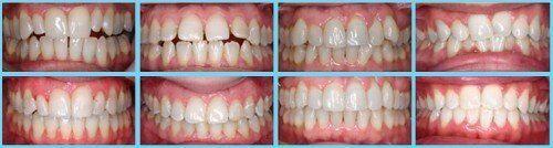 Một số vấn đề bất thường ở bộ răng hỗn hợp