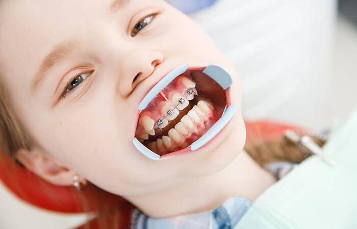 thời điểm nắn răng cho trẻ tốt nhất