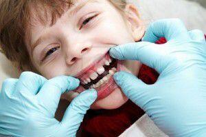 Nắn chỉnh răng cho trẻ em