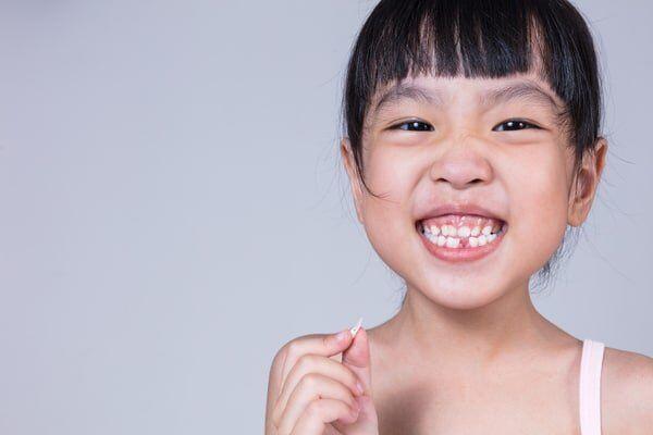 nắn chỉnh răng cho trẻ nhỏ
