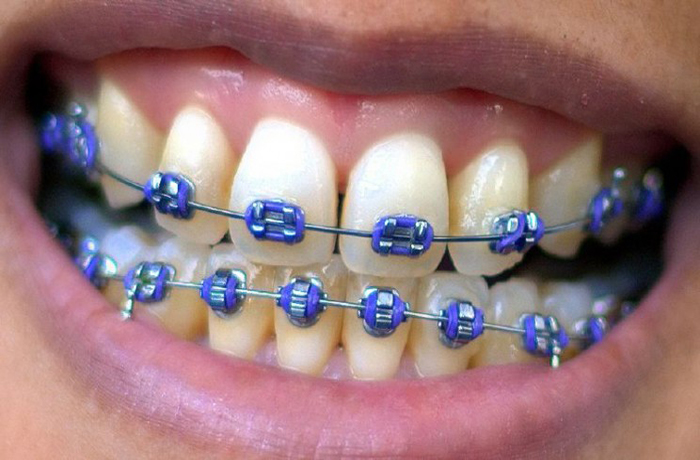 nắn chỉnh răng hết bao nhiêu tiền