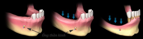 Nâng xoang hàm trong cấy ghép răng implant 1