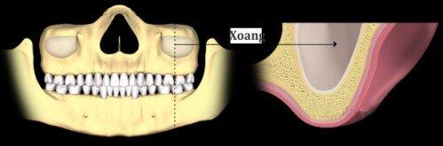 Nâng xoang hàm trong cấy ghép răng implant 2