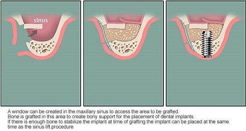 Nâng xoang hở khi cấy ghép implant