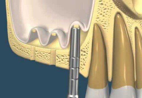 Nâng xoang kín khi cấy ghép implant