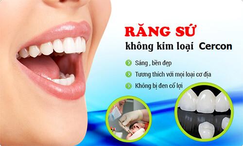 Nên bọc răng sứ cercon ở đâu?