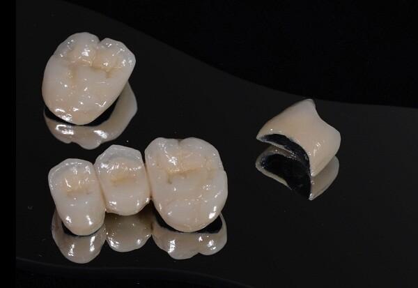 Nên sử dụng răng toàn sứ hay sứ kim loại?