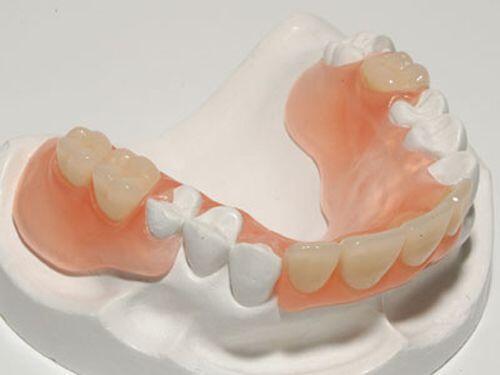 Nên cấy ghép implant hay hàm giả cầu răng