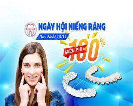 Miễn phí 100% chi phí chỉnh nha trong Ngày Hội Niềng Răng 18/11/2017