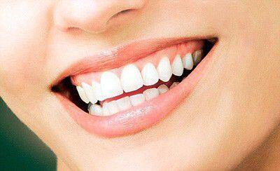 Người khác có biết tôi đang mang răng sứ