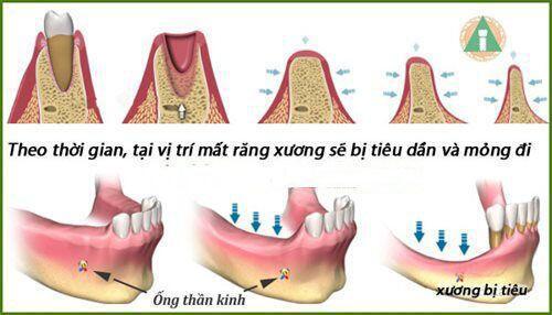 Nguy cơ có thể xảy ra khi nâng xoang ghép xương