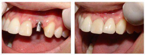 Nguy hiểm từ nha chu và khắc phục bằng cấy răng implant