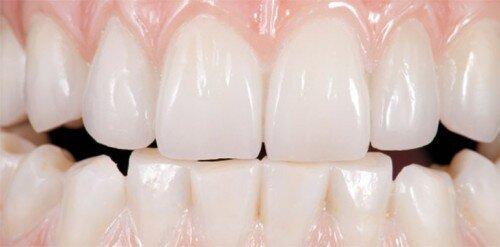 Nguyên nhân hôi miệng sau khi trồng răng