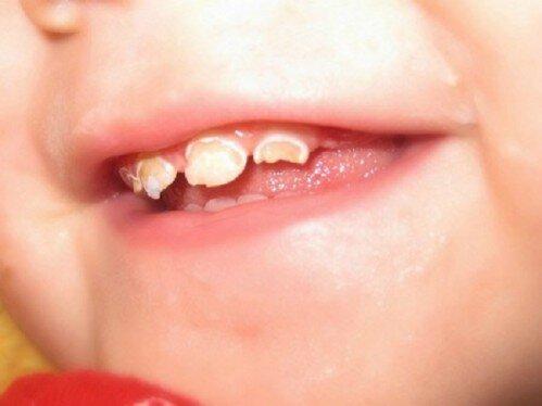 Nguyên nhân khiến răng trẻ em bị mủn nát