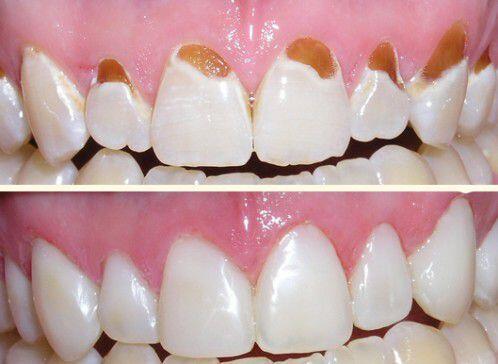nguyên nhân gây sâu răng và cách điều trị