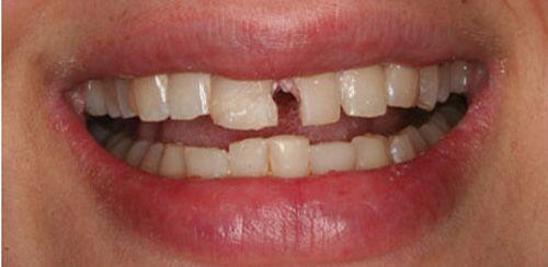 Biến chứng chảy máu kéo dài sau nhổ răng